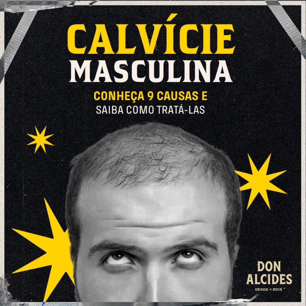 calvície masculina