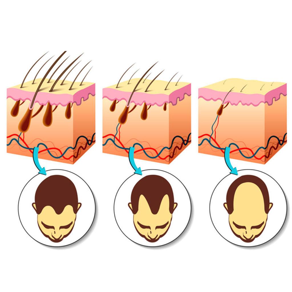 miniaturização dos fios do cabelo
