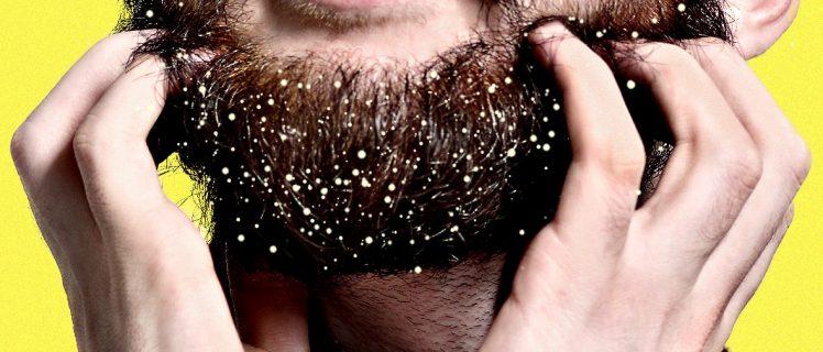 caspa na barba
