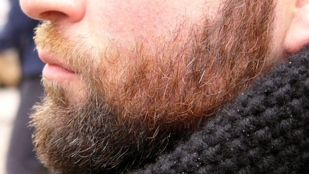 caspas na barba
