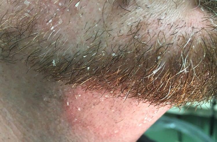 o que causa caspa na barba
