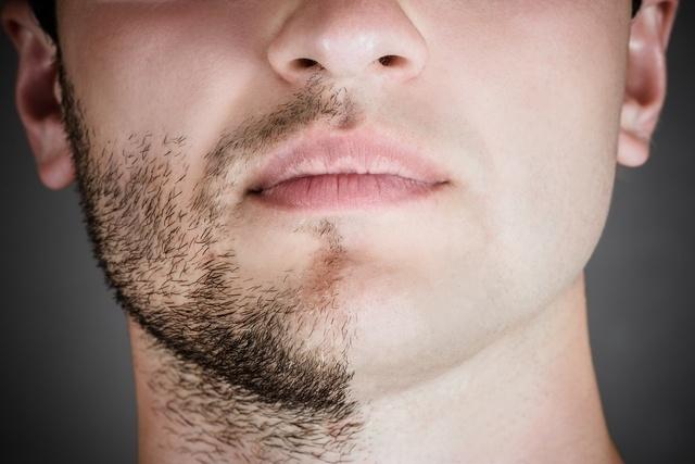 resultados minoxidil para barba